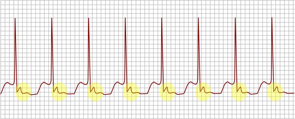 Se observan ondas P después de la contracción ventricular.