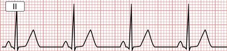 Electrocardiograma de un ritmo sinusal normal