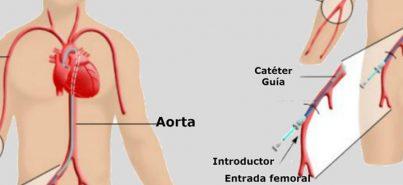 5 pasos para un cateterismo diagnóstico